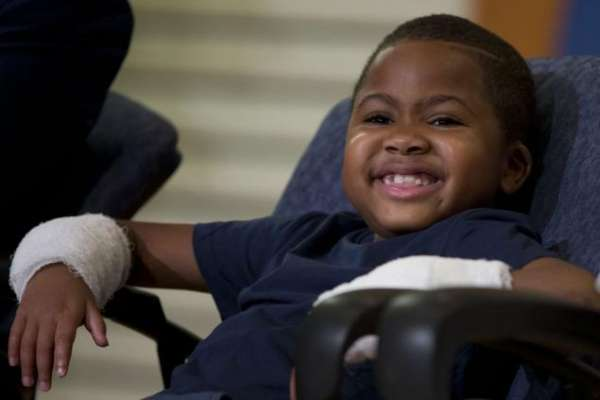double-hand-transplant-child